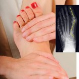Get Massage for Foot, Ankle and Calf Pain